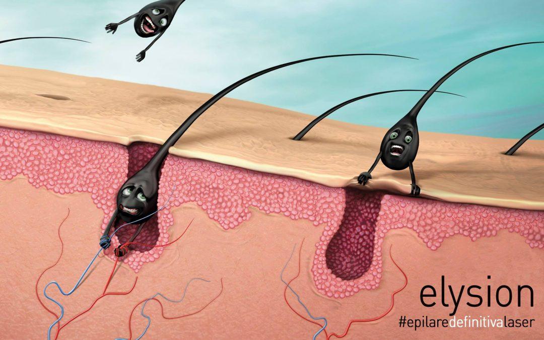 Vreti sa stiti diferentele intre epilarea definitiva cu LASER si epilarea definitiva cu SPL ?