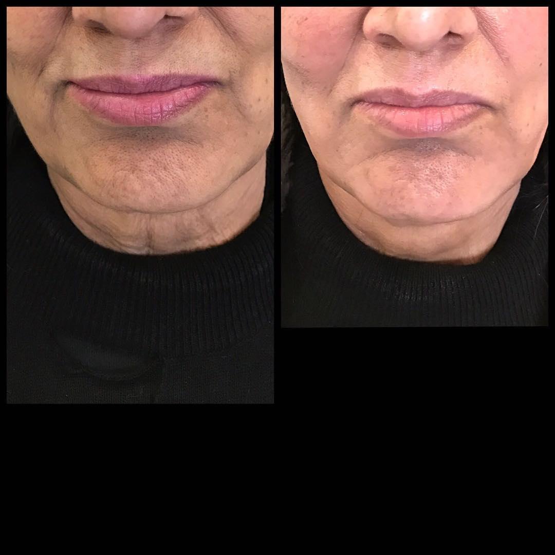 tratament laser rejuvenare faciala