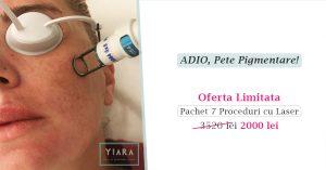 tratament pete pigmentare cu laser