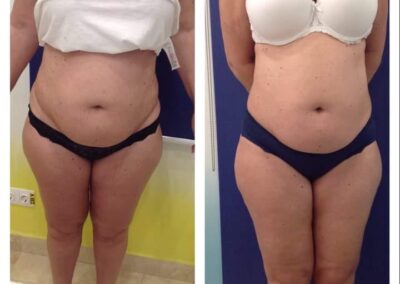 6 x Accent Prime + 8 x Cryolipolysis