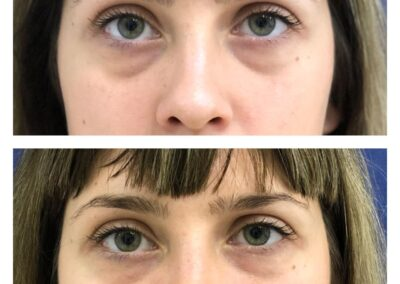 Hyaluronic Acid treatment - Reducing dark circles under the eye