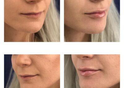 Hyaluronic Acid treatment - Lip volume