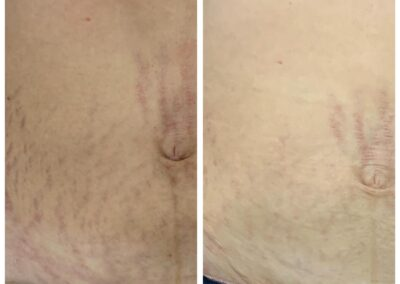 Stretch marks treatment - 4 sessions