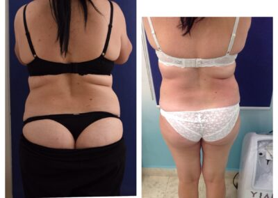 4 x Cryolipolysis + 6 x Accent Prime