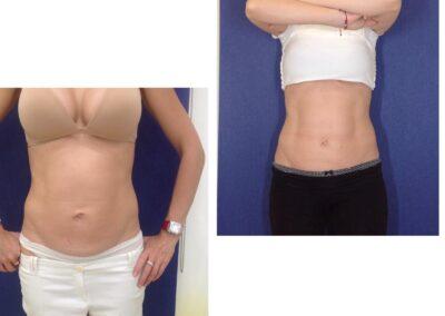 Tratament Accent Prime - 6 sedinte abdomen