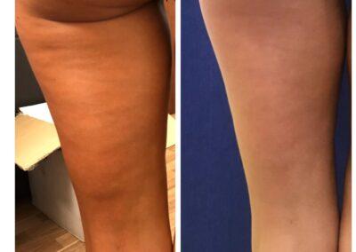 Tratament Celulita - Accent Prime - 6 sedinte