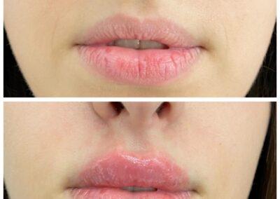 Marire Buze - Acid Hialiuronic Aspect Natural - Russina Lips