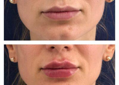 Marire Buze - Acid Hialiuronic - Russian Lips